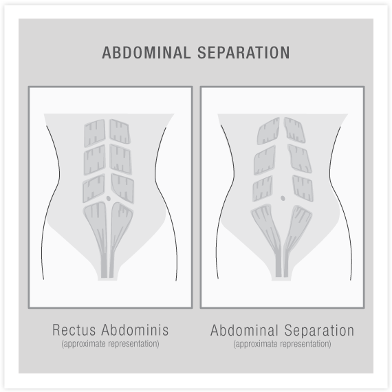 Modifications for Abdominal Separation